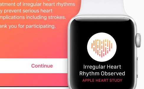 Apple Watch : plus de 400 000 participants à l'étude cardiaque