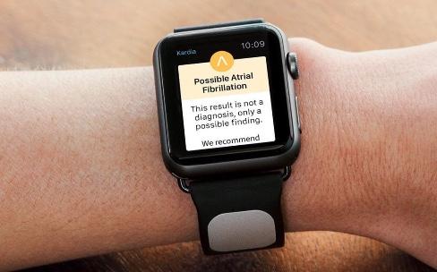 Avec la santé, l'Apple Watch revient à ses origines